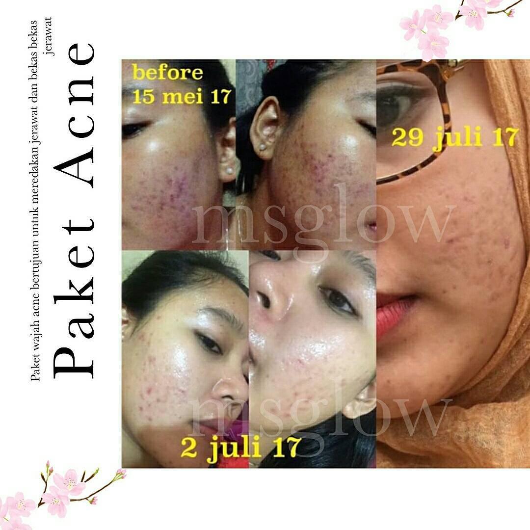 khasiat paket acne ms glow
