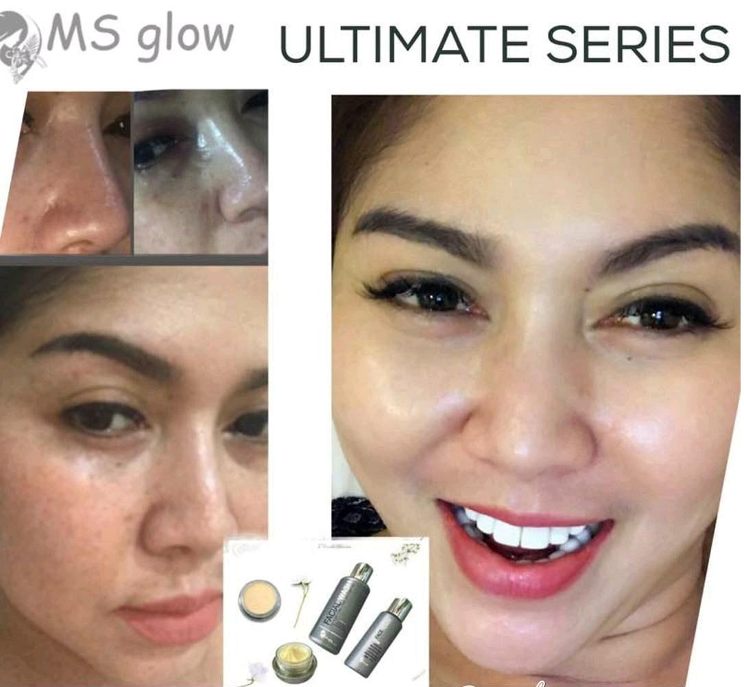testimoni ms glow flek series