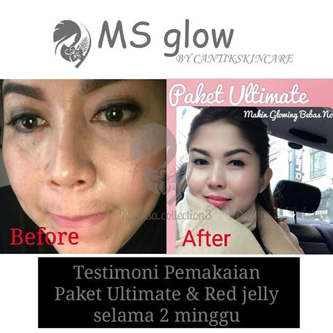 testimoni ms glow ultimate series