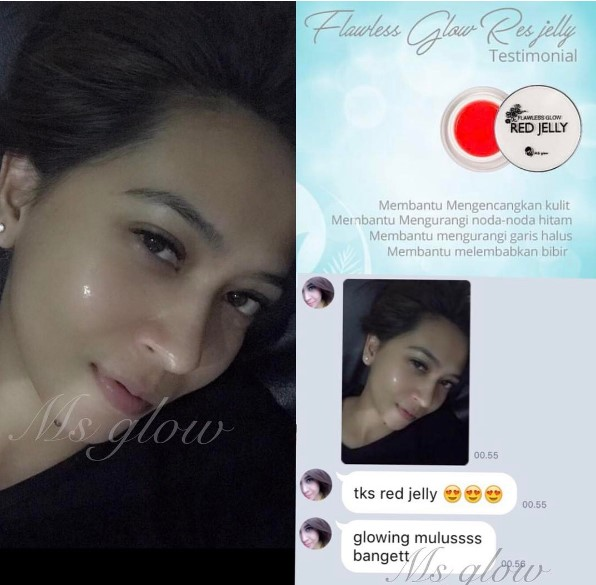 testimoni red jelly ms glow