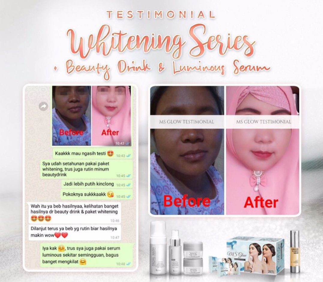 Ms Glow Whitening Series Dikombinasi Dengan Produk Beauty Drink