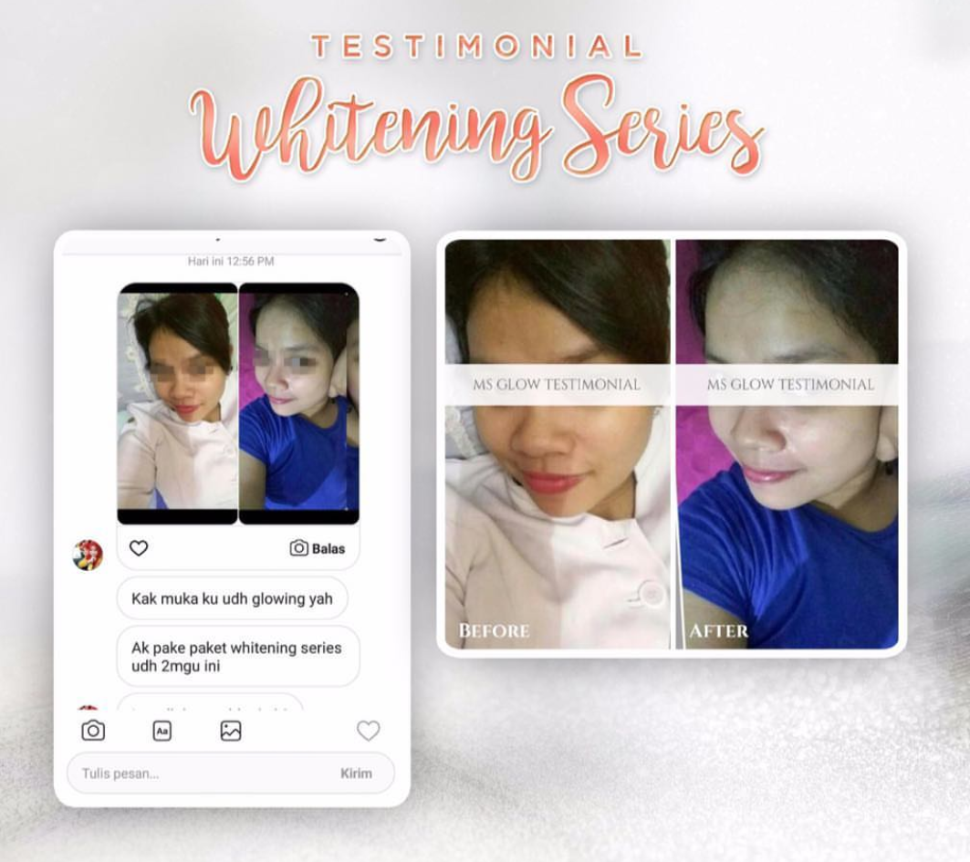 Testimoni MS Glow Whitening Series