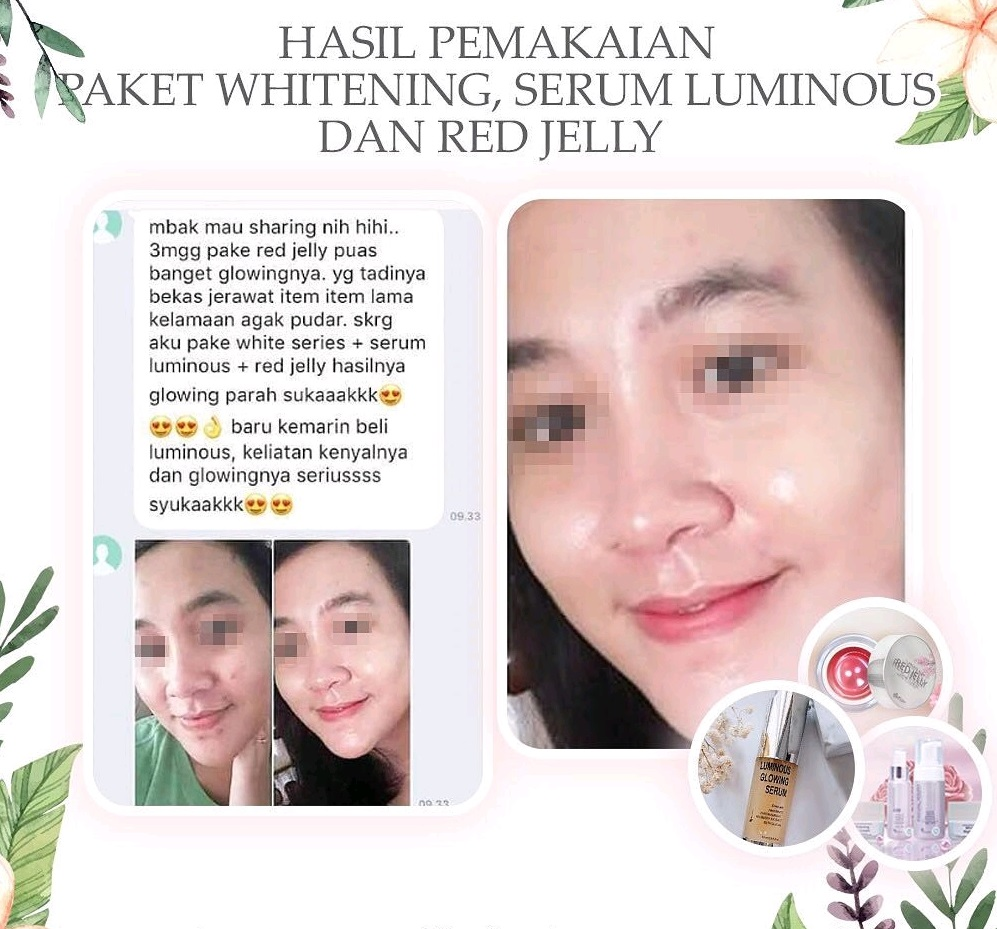 Wajah Glowing Berkat Luminos Serum dan Red Jelly Ms Glow