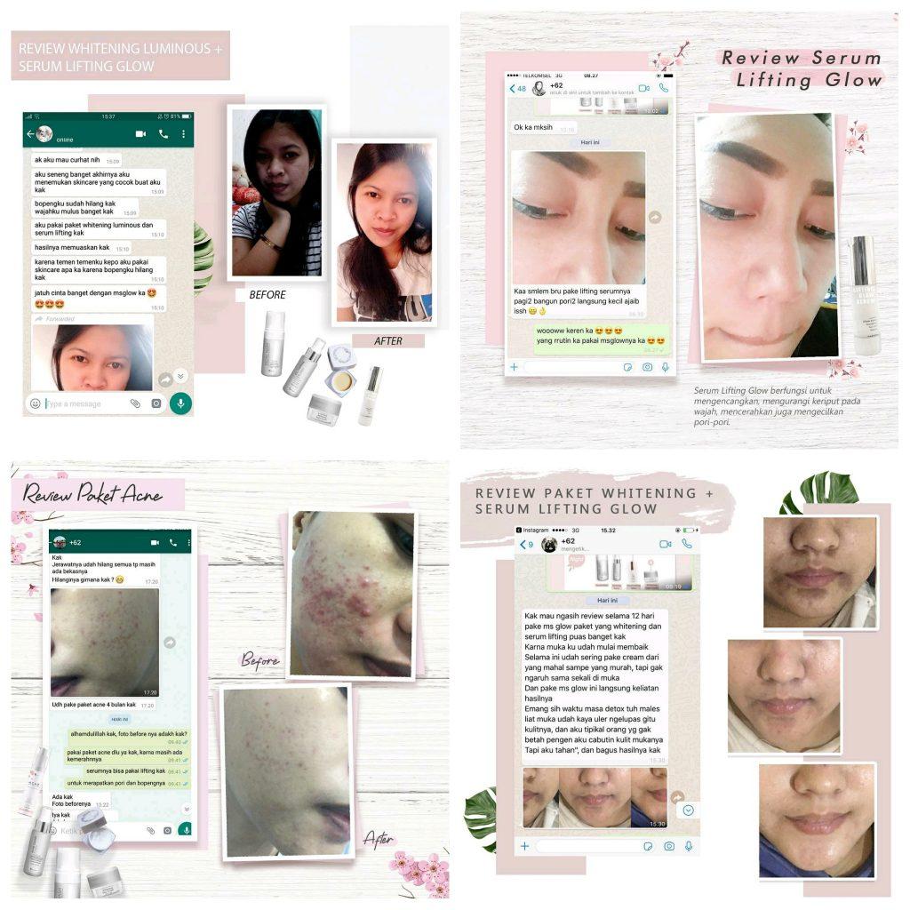 Testimoni Pakai Ms Glow Skincare Sangat Bagus