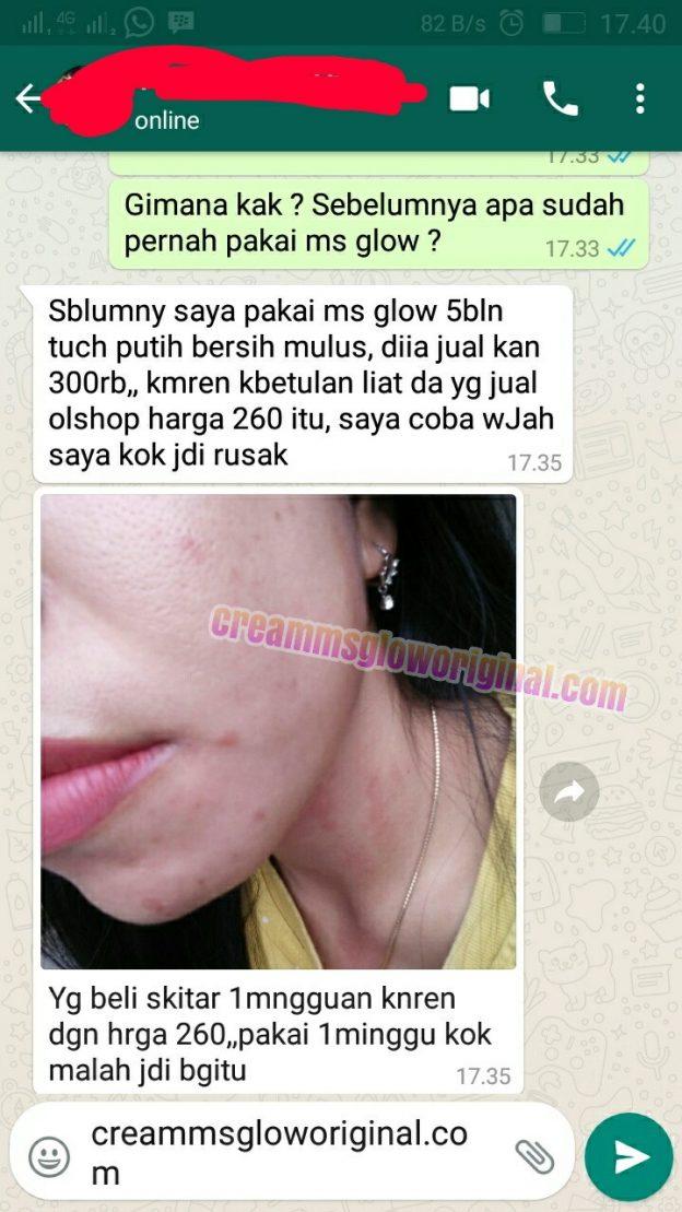 Bahaya ms glow palsu