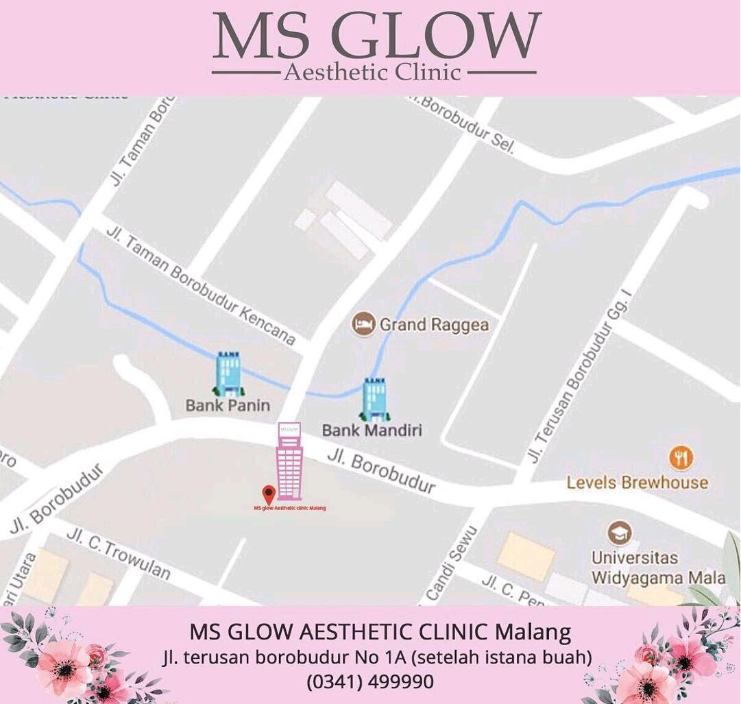alamat klinik ms glow malang