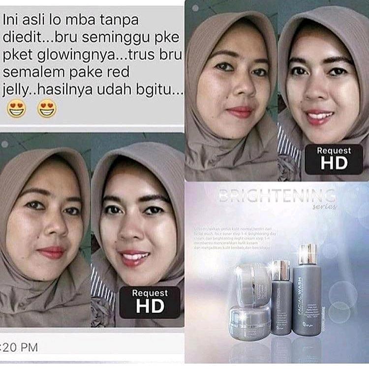 Testimoni Wajah Cerah Karena Ms Glow Jual Cream Ms Glow Original