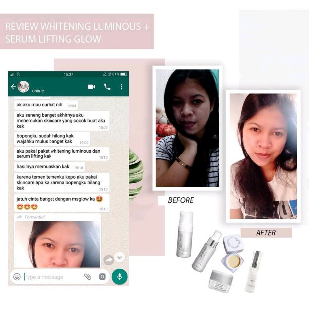 Review Paket Whitening Luminous Dengan Serum Lifting
