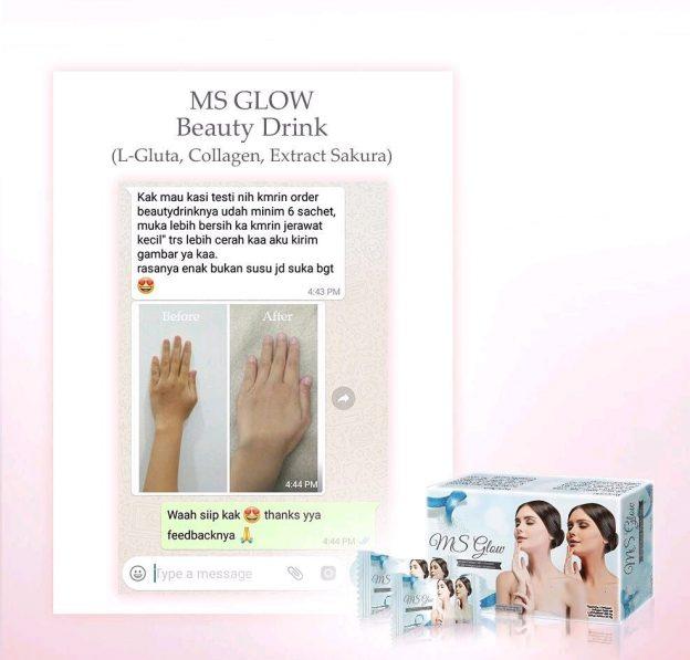 Testi Putih Bertahap Dengan MS Glow Beauty Drink