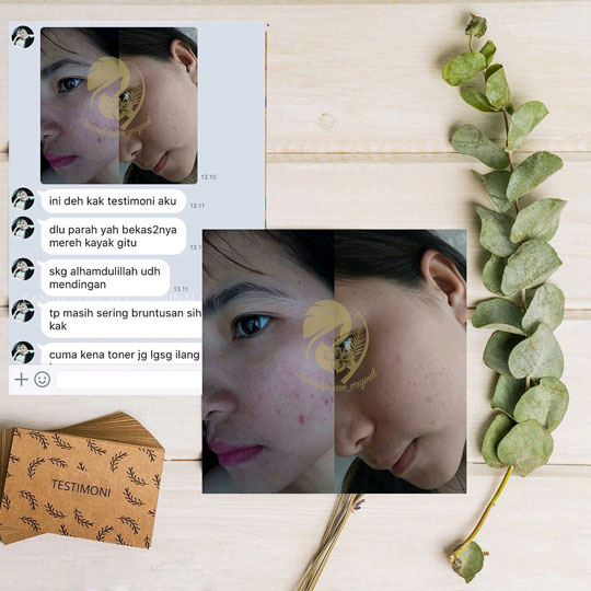 Hasil Pemakaian Paket Acne Ms Glow Skincare
