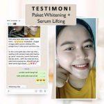 Jual Cream Perawatan Wajah Terbaik Ms Glow Original di Kalimantan timur Harga Termurah Kualitas Terjamin